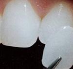 Fateta dentara